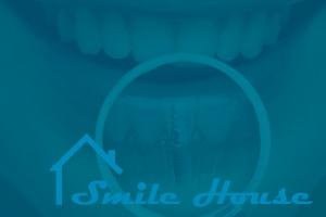Классификация этапов имплантации зубов