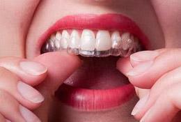 основные преимущества кап для зубов