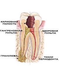 лечение периодонтита зуба